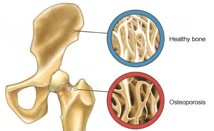 کلسیم در رشد استخوانها چه تاثیری دارد؟