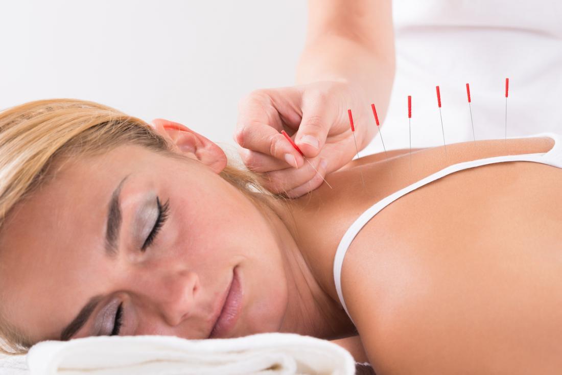 طب سوزنی روشی موثر برای افزایش میل جنسی زنان