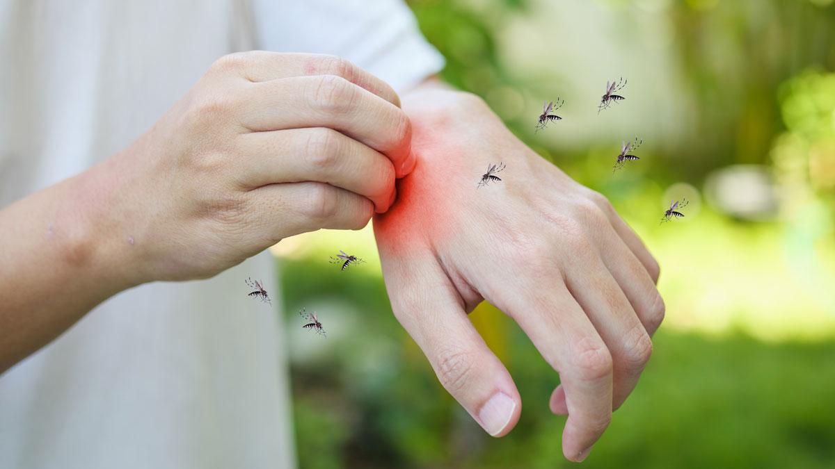 پماد کالاندولا برای نیش حشرات