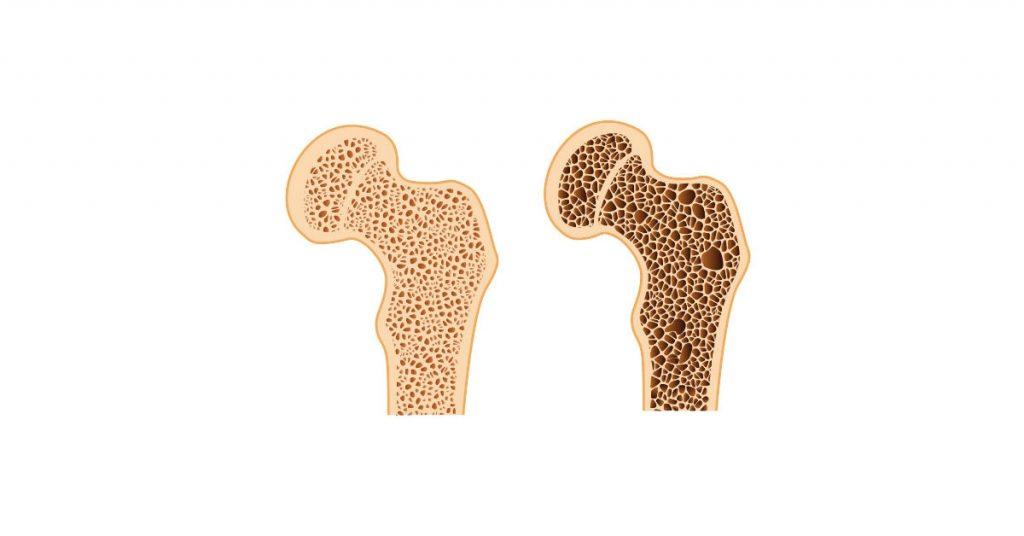 عدم تراکم سلولها در پوکی استخوان