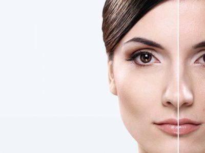 تاثیرات قرص کیوتن برای پوست